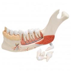 Hémi-mandibule, avec 8 dents cariées, en 19 parties