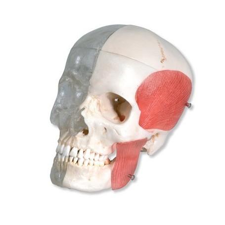 Crâne avec structures osseuses