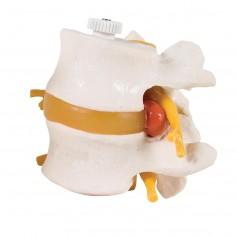 2 vertebres lombaires