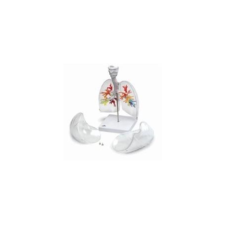 CT - Arbre bronchique avec larynx et poumon transparent