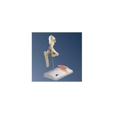 Mini-articulation de la hanche avec coupe transversale