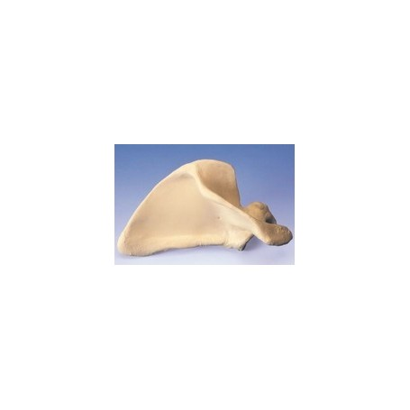 Scapula (Omoplate), droite