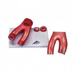 Modèle d'athérosclérose, avec coupe transversale de l'artère