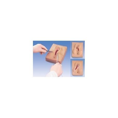 Suture post-épisiotomie, 3 pièces