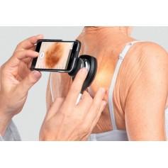Coques d'adaptation pour dermatoscope Heine NC2
