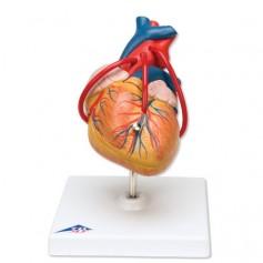 Coeur classique avec pontage, en 2 parties