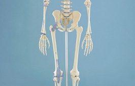squelette erler zimmer
