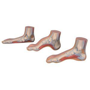 série de pieds mini